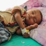 Acute malnutrition threatens half of children under 5 in Yemen in 2021: United Nations