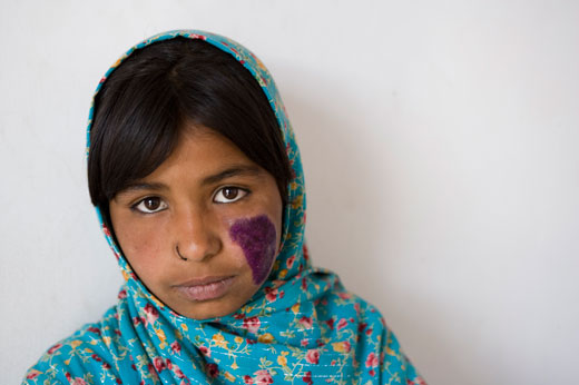 Cutaneous leishmaniasis is largely found among young girls, women and children who spend more time at home where the sandfly, transmitting Leishmania, hides and breeds.