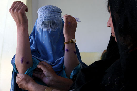 Leishmania, a disease of poverty,  poses a huge social burden in Afghanistan. When not treated in a timely way, the disease leaves  lesions and scars; sometimes preventing young girls from getting married.
