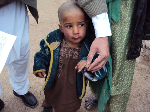 As a consequnces of intense efforts, no child has been reported as having paralysis due to poliomyelitis in Uruzgan this year, 2012.