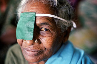 WHO releases new global estimates on visual impairment