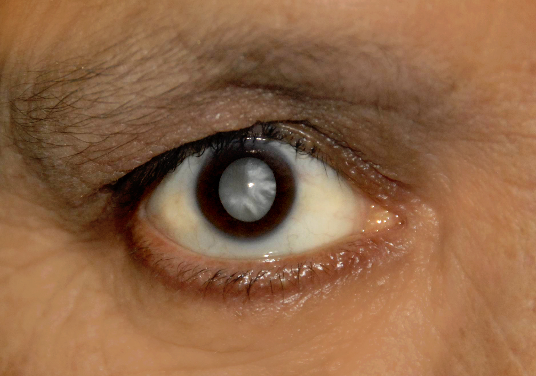 Image of an eye with cataract