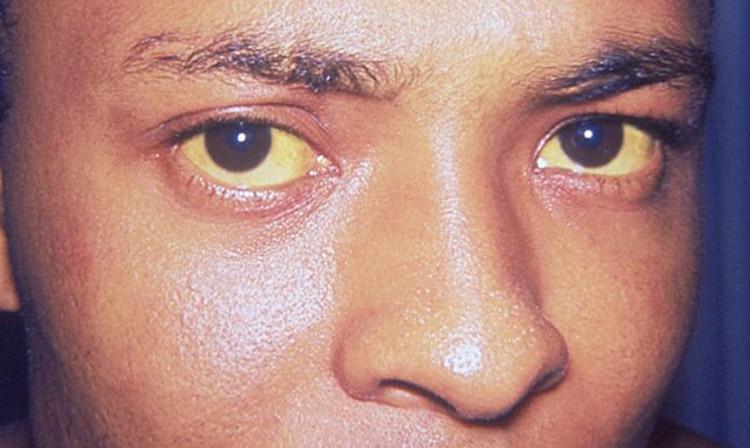 Hepatitis kann aufgrund einer Gallengangobstruktion Gelbsucht oder eine Gelbfärbung von Haut und Augen verursachen (Foto: Dr. Thomas F. Sellers, Emory University / CDC)