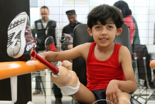 To address shortages in prosthetic and orthotic devices, WHO collaborates with the Directorate of Physical Rehabilitation to increase the local production and maintenance of fitted devices. WHO has provided 5341 disabled people across Syria with prosthetic/assistive devices and donated manufacturing equipment, artificial limbs and accessories for prosthetic devices to national health authorities.