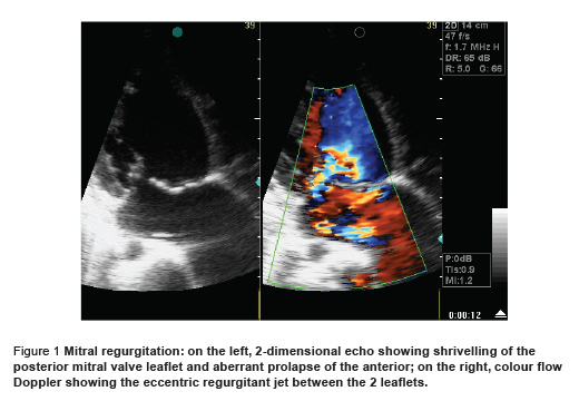 Figure 1 Mitral regurgitation: on the left, 2-dimensional echo showing shrivelling of the  posterior mitral valve leaflet and aberrant prolapse of the anterior; on the right, colour flow  Doppler showing the eccentric regurgitant jet between the 2 leaflets.
