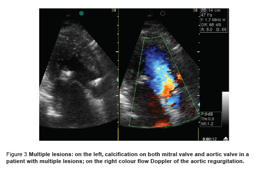Figure 3 Multiple lesions: on the left, calcification on both mitral valve and aortic valve in a  patient with multiple lesions; on the right colour flow Doppler of the aortic regurgitation