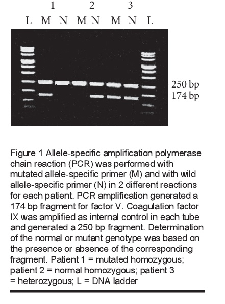 Figure 1 Allele-specific amplification polymerase chain reaction (PCR) was performed with mutated allele-specific primer (M) and with wild allele-specific primer (N) in 2 different reactions for each patient. PCR amplification generated a 174 bp fragment for factor V. Coagulation factor IX was amplified as internal control in each tube and generated a 250 bp fragment. Determination of the normal or mutant genotype was based on the presence or absence of the corresponding fragment. Patient 1 = mutated homozygous; patient 2 = normal homozygous; patient 3 = heterozygous; L = DNA ladder