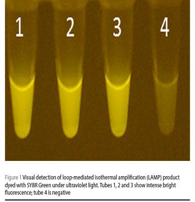 Figure 1 Visual detection of loop-mediated isothermal amplification (LAMP) product dyed with SYBR Green under ultraviolet light. Tubes 1, 2 and 3 show intense bright fluorescence; tube 4 is negative