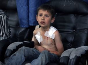 A young Syrian boy in need of health care