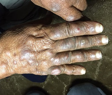 Abdullah's leprosy was diagnosed in time to save him from severe nerve damage