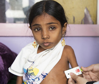 Seven-year-old Afaf travels more than 100 km of difficult roads to receive treatment for severe acute malnutrition