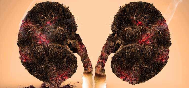 Tobacco affects nearly every organ