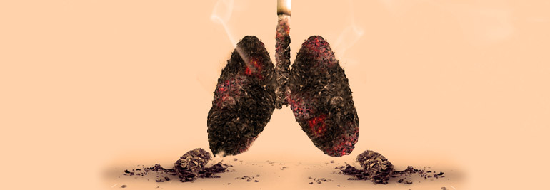 World No Tobacco Day 2019: Tobacco and lung health