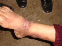 Leishmaniasis ankle lesion