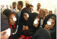 A group of Yemeni women with bandages over their eyes following cataract surgery