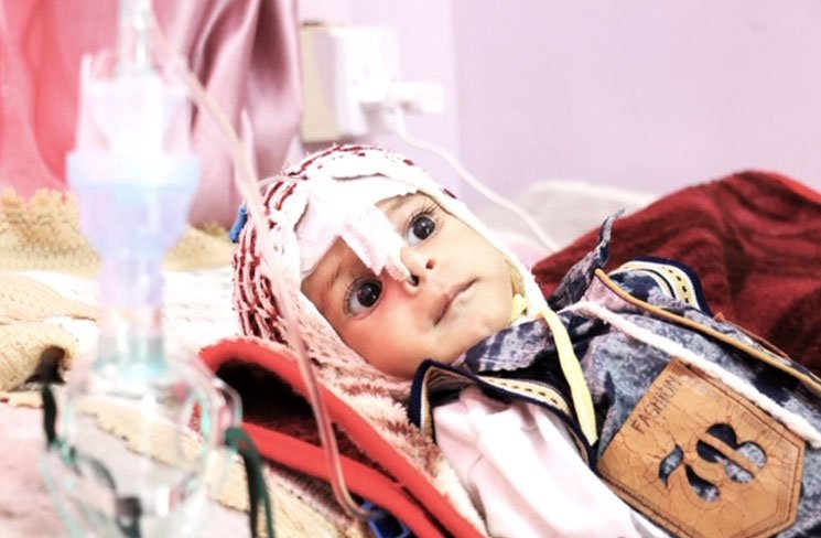 Cholera and malnutrition in Yemen: a real threat to millions of people